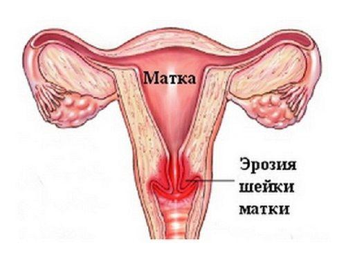 eroziya_sheiki_matki1