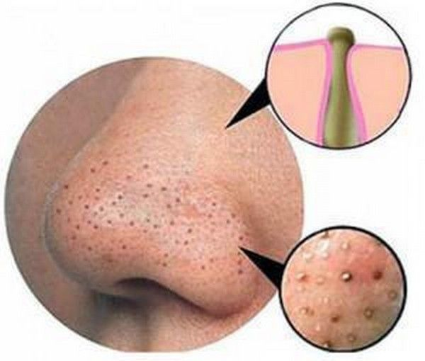 How-to-remove-blackheads