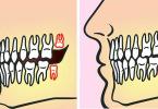 zuby-mudrosti